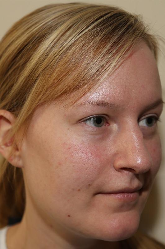 Rhinoplastie chirurgie maxillo facial bruxelles waterloo