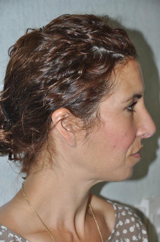 Rhinoplastie chirurgien maxillo faciale bruxelles waterloo