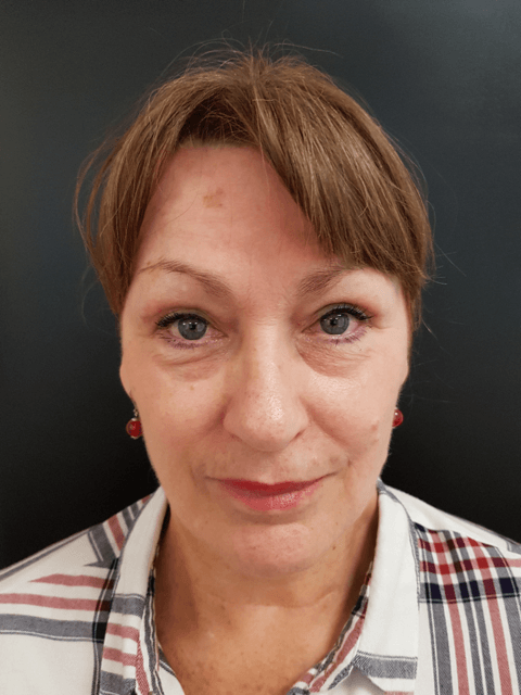 Blépharoplastie chirurgien maxillo faciale bruxelles waterloo