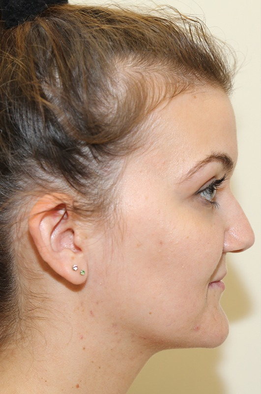 Génioplastie chirurgie esthetique bruxelles waterloo