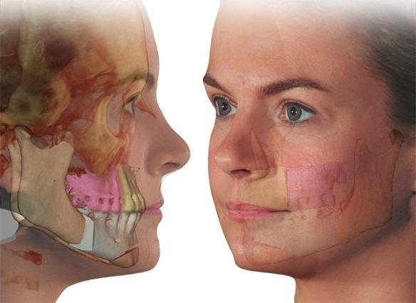 Chirurgie orthognathique chirurgie esthetique bruxelles waterloo
